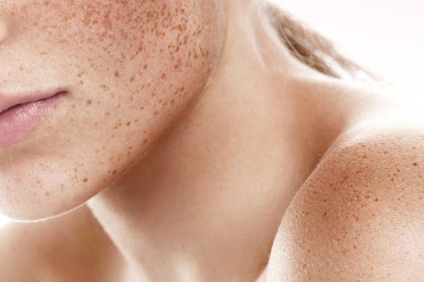 Cause e rimedi all'iperpigmentazione