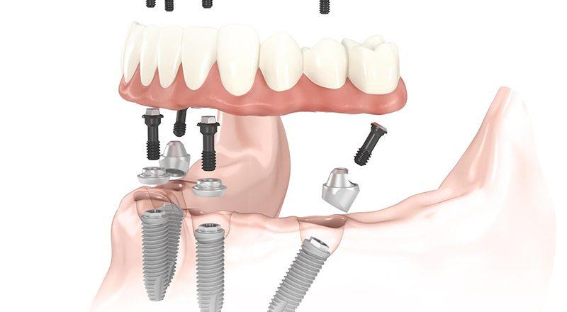 Studio Cristaldent: gli specialisti dell'implantologia dentale a Torino
